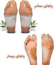 سلامت پاها و سه مشکل شایع آن