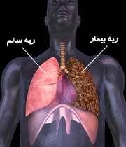 سرطان ریه کشنده ترین سرطان است