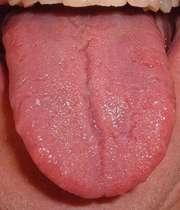درمان جوش ته زبان