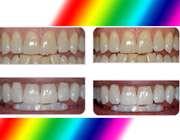مقایسه دندان ها