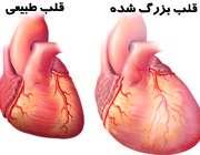 وقتي قلب بيش از حد بزرگ ميشود
