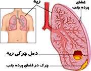 بیماری آمپیم در اثر چرک ریه