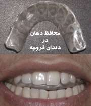محافظ دهان در دندان قروچه
