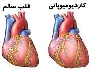 کاردیومیوپاتی (بیماری عضله قلب)