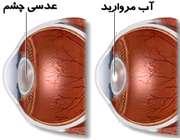 آبمروارید چشم