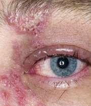 تظاهرات پوستی بیماری زونا