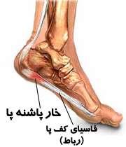 چرا پاشنه پایم درد میکند؟