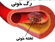 خطرات لخته شدن خون در رگ ها