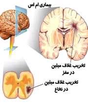 4 عاملی که بیماری ام اس را بدتر میکنند