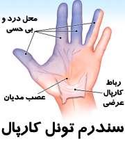 درد مچ دست در سندرم تونل کارپال