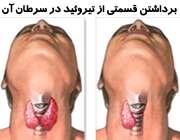 جراحی و برداشتن قسمتی از غده تیروئید