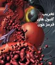 کم خونی همولیتیک