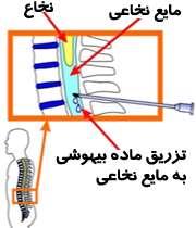 بی حسی نخاعی برای عمل جراحی