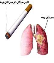 تاثیر سیگار بر سرطان ریه