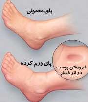 چرا پاها ورم میکنند؟