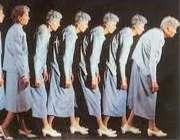 پوکی استخوان در زنان با افزایش سن