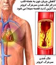 بیماری آنژین با درد قفسهسینه