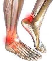 درد مچ و ساق پا