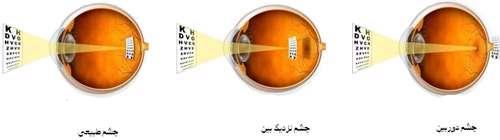 اندام بینایی و شنوایی