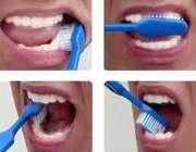 طرز صحیح مسواک زدن دندان ها