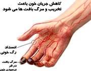 انسداد رگ های خونی در بیماری برگر