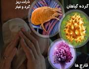 10 عامل تحریک کننده آلرژی
