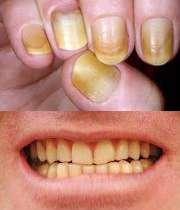 زردی ناخن و دندان در سیگاری ها
