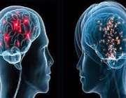 فشار روانی، مغز زنان را زودتر پیر میکند