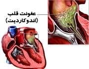 عفونت قلب غیر مسری است