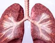8 توصیه برای بیماری مزمن تنفسی