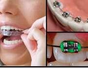 روش های زیبا کردن دندان