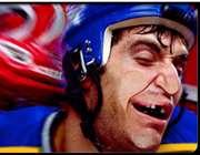 برخود ضربه به دهان و دندان در ورزش