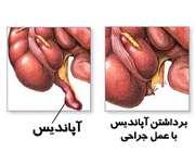 عمل جراحی آپاندیس