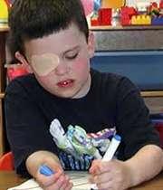 تنبلی چشم تا قبل از 10 سالگی قابلدرمان است