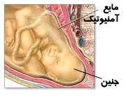 به خشکی افتادن جنین یعنی چه؟