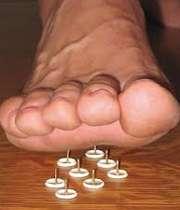 قطع شدن پا در بیماران دیابتی