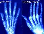 تشخیص و درمان آرتریت روماتوئید