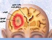 تومور مغزی