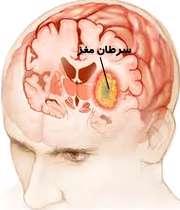 5 راه تشخیص سرطان مغز