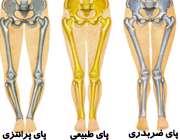 پاهای پرانتزی و ضربدری در کودکان