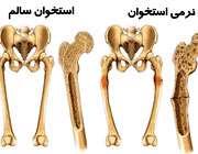 نرمی استخوان یا استئومالاسی