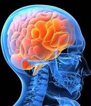 6 راه درمان ورم مغزی