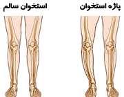 بیماری پاژه استخوان چیست؟