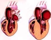 بزرگ شدن قلب؛ علل، علائم و درمان
