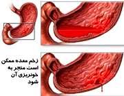 22 علت استفراغ خونی