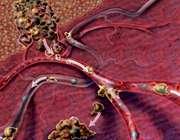 متاستاز؛ پخش سرطان در بدن