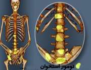 متاستاز استخوان چیست؟