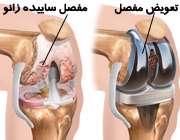 جراحی تعویض مفصل