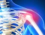 کندھے کی بیماری  کی تشخیص و علاج