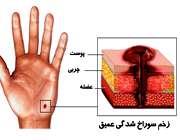 عفونت زخم پوست
